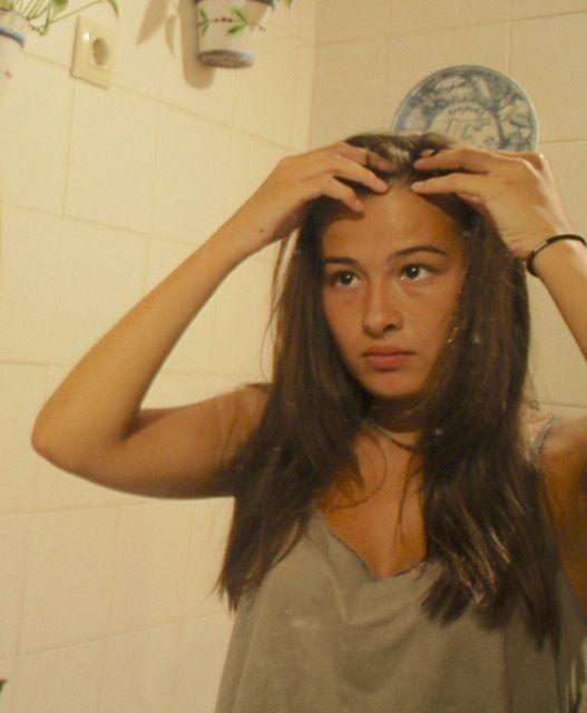 最近増えてるこめかみの女性の薄毛:あなたは大丈夫?
