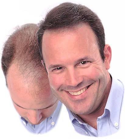 髪が薄くなった?効果抜群の薄毛改善方法をご紹介