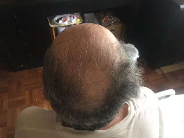 父親がハゲなら若ハゲの危険?髪質はどこまで遺伝するのか