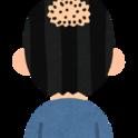 M字ハゲ(生え際・前髪の薄毛)
