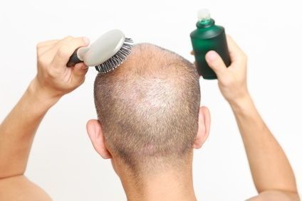 【体験談あり】<抜け毛>チャップアップで初期脱毛は本当にある?使用期間別まとめ