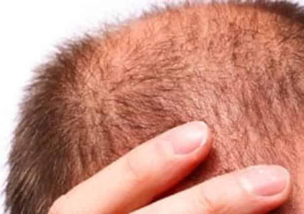 初期脱毛が再開?AGA治療薬・ミノキシジルの初期脱毛の止まらない原因とは