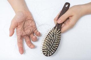 AGA治療で初期脱毛が続く期間や回数はどのくらい?