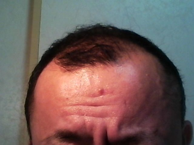 【体験談】 カツラで失敗した手遅れハゲが育毛剤を長期実践!最重要だったのは何か?