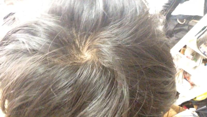 【体験談】高校生からの若ハゲ治療、辿り着いた答え
