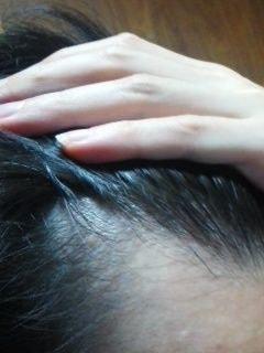 【体験談】ミノタブ×デュタスで治療中!薄毛歴19年のAGA治療、試行錯誤記録