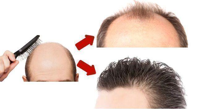 【画像あり】自毛植毛のショックロスって?ショックロスの時期と回復期間まとめ