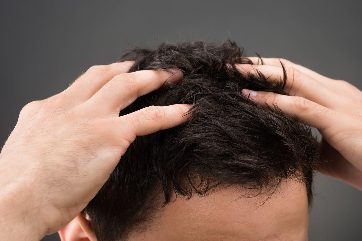 自毛植毛した髪が伸びるまでどれくらいかかる?術後の髪の成長スピードまとめ