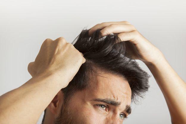 気が付くと髪がない…意外な薄毛の原因「抜毛症」って一体何!?治し方まで徹底解説!