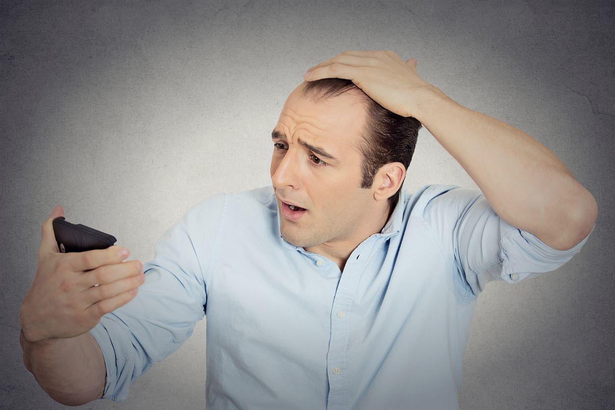 【厳選】円形脱毛症に詳しいおすすめサイト