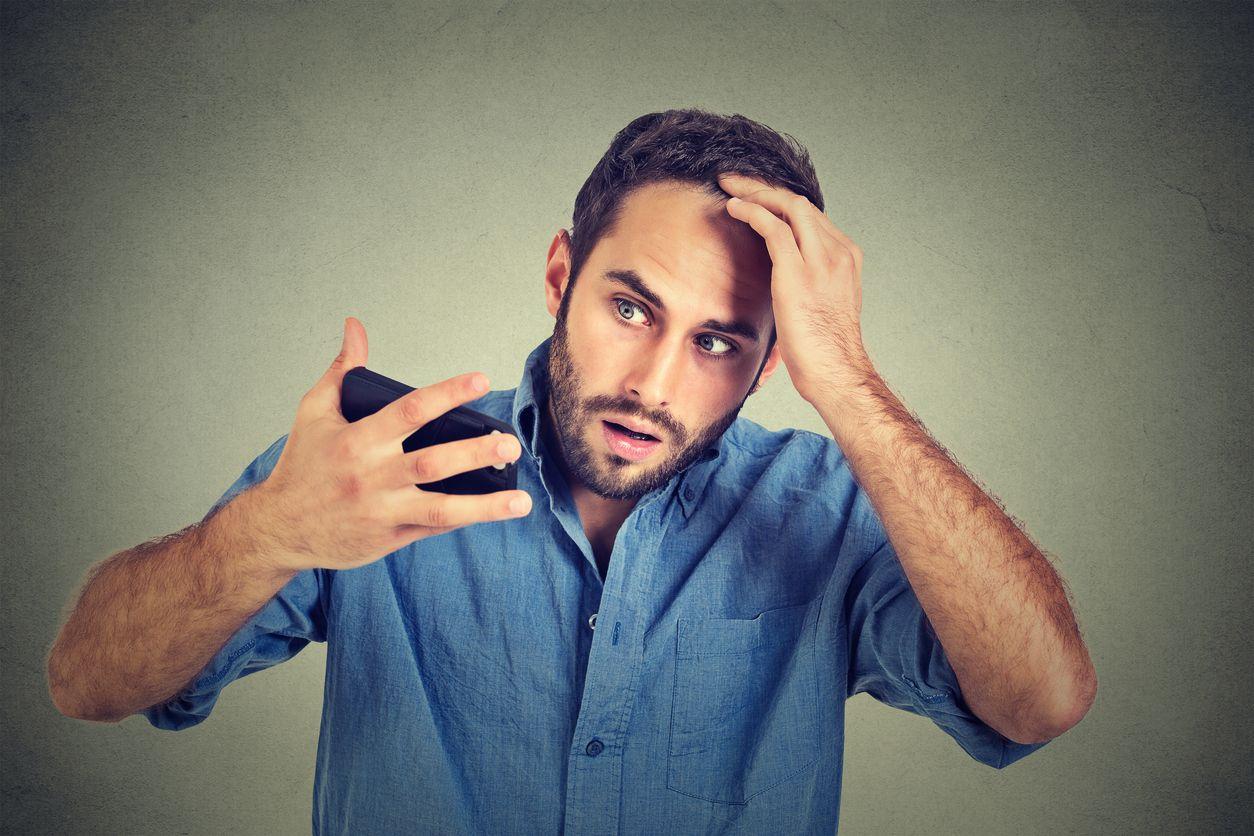 【ハゲる髪質】柔らかい髪質、猫っ毛、細い髪はハゲやすい?危ない髪質総まとめ
