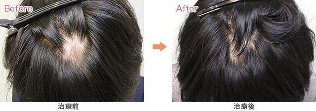 円形脱毛症 脱毛症治療に使用される塗り薬