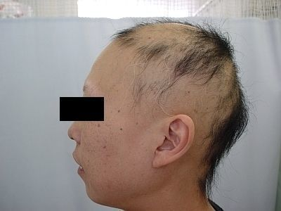 円形脱毛症 汎発性脱毛症