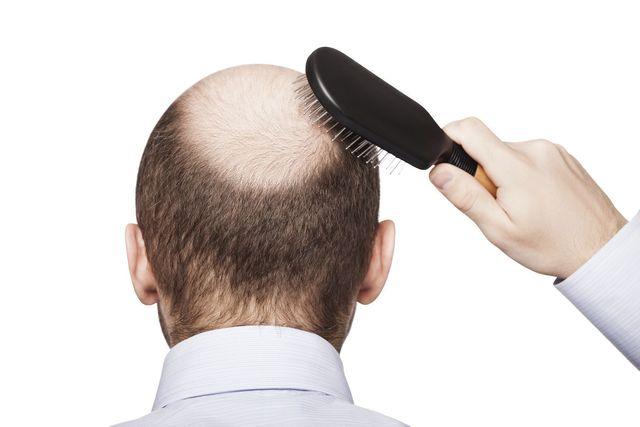 髪質 まずは現状の髪質をチェック