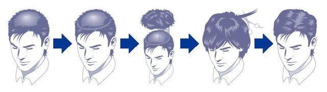 M字ハゲ(生え際前髪の薄毛) 編み込み法(スヴェンソン式増毛法)