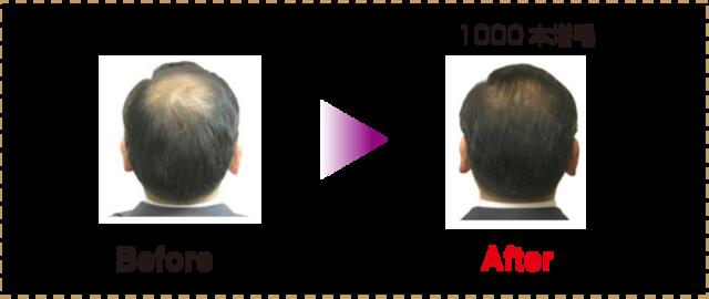 M字ハゲ(生え際前髪の薄毛) 増毛にかかる時間