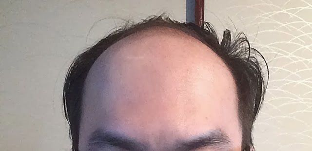 髪型 U字ハゲ