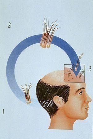 薄毛対策薄毛治療 植毛