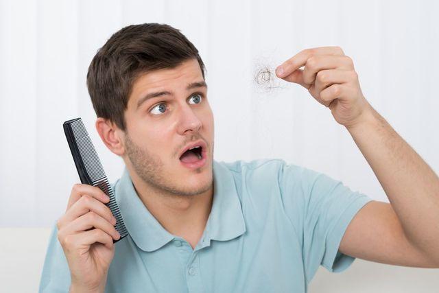 若年性脱毛症 若はげの4つの原因