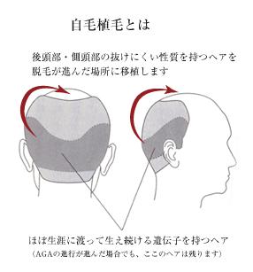 O字ハゲ(頭頂部ハゲ/つむじハゲ) AGAの影響を受けにくい後頭部の毛髪を自己植毛