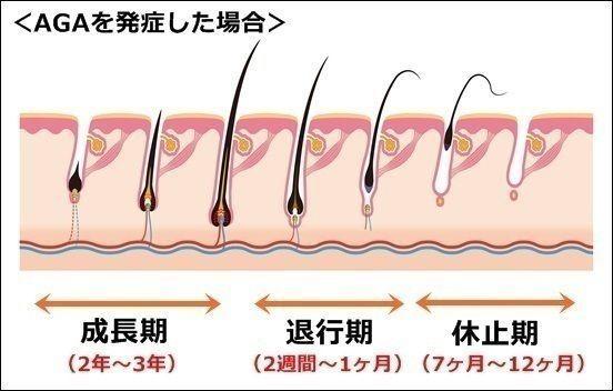 U字ハゲ 男性脱毛症(AGA)