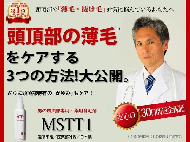 O字ハゲ(頭頂部ハゲ/つむじハゲ) MSTT1(株式会社 EYEWORLD)
