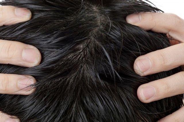 M字ハゲ(生え際前髪の薄毛) 頭皮の汚れ
