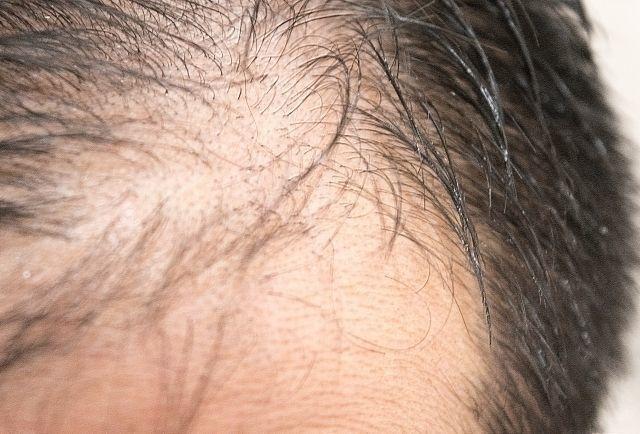 生活習慣 若ハゲ薄毛改善に重要な3つの成分