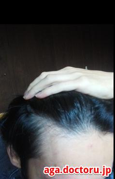 M字ハゲ(生え際前髪の薄毛) 2.生え際が後退してくる