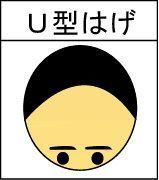 薄毛対策薄毛治療 U字