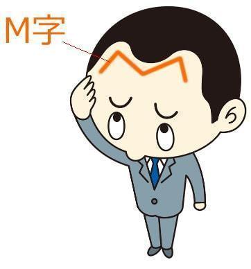 薄毛対策薄毛治療 M字