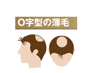 薄毛対策薄毛治療 O字