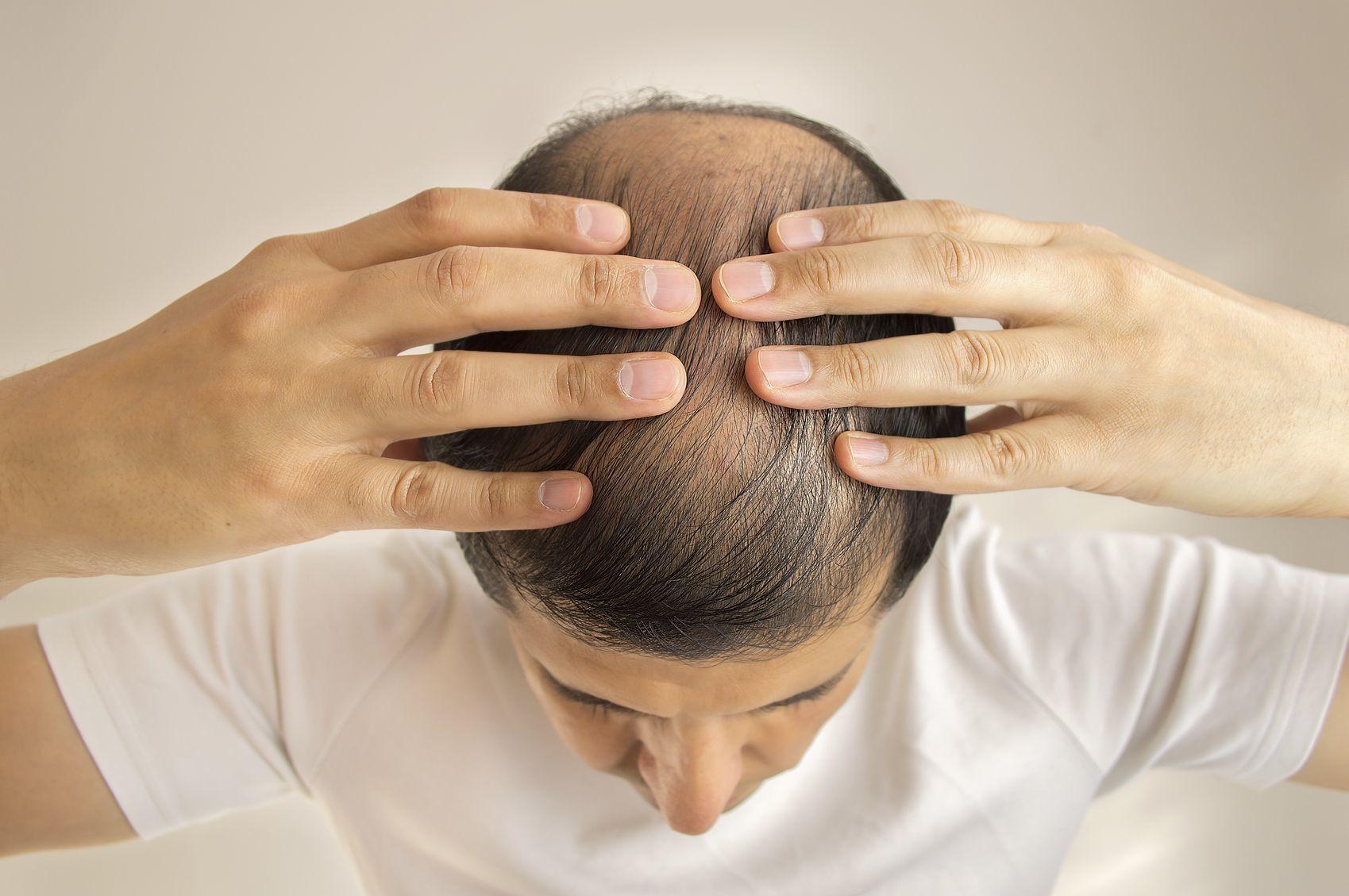 AGA若ハゲの原因 AGA発症の最大の要因!男性ホルモンDHT(ジヒドロテストステロン)