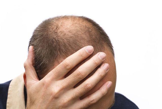 ストレス なぜストレスによってAGAが発症するのか?