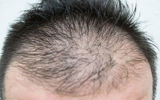 AGA若ハゲの治療 髪の毛の成長スピードも理由のひとつ