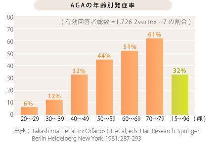 AGA若ハゲの予防 何歳からハゲる人が多いのか?