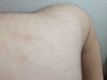 ミノキシジル 副作用9:体毛が濃くなる