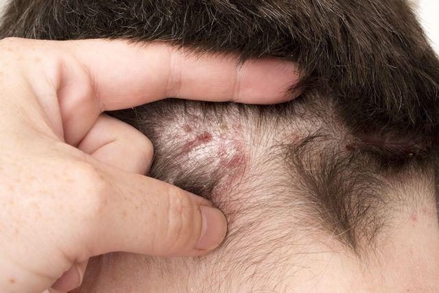 ミノキシジルタブレット(ミノタブ) 頭皮の炎症