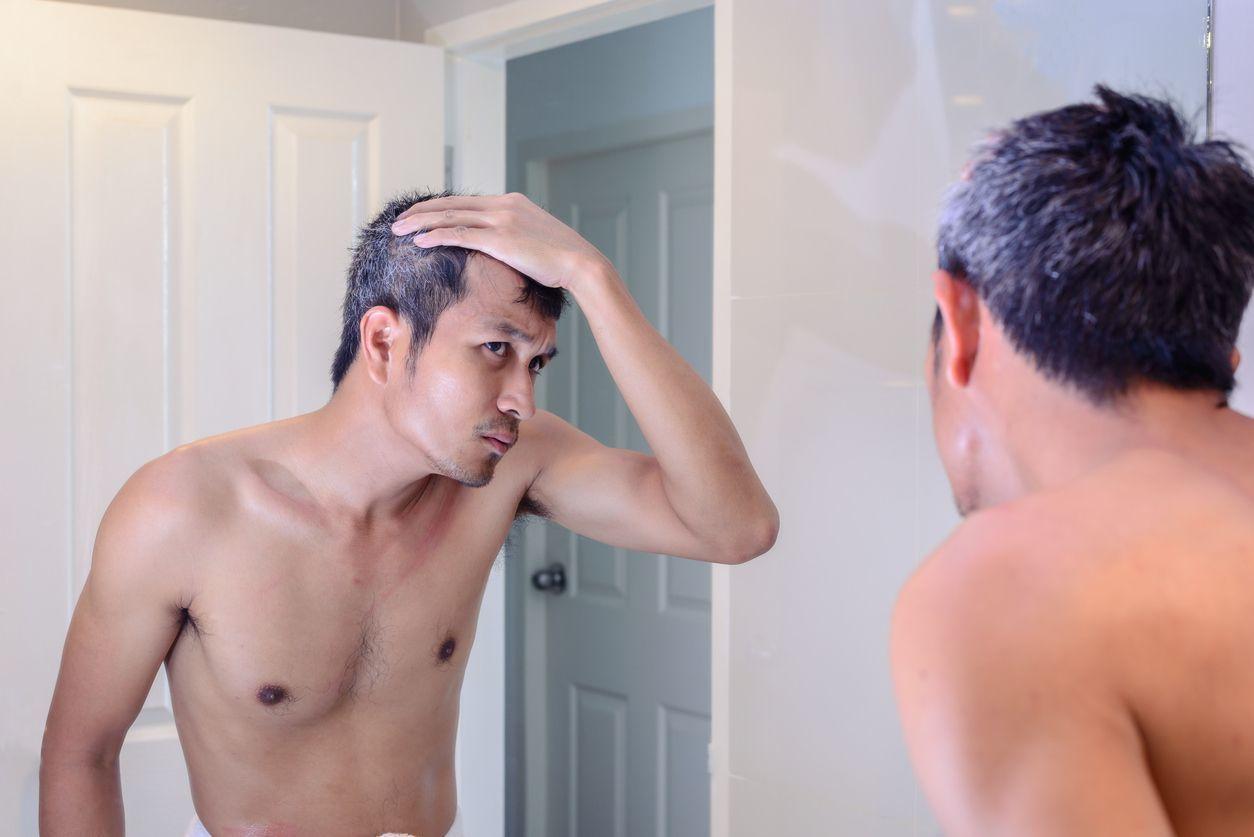 ミノキシジルタブレット(ミノタブ) 初期脱毛