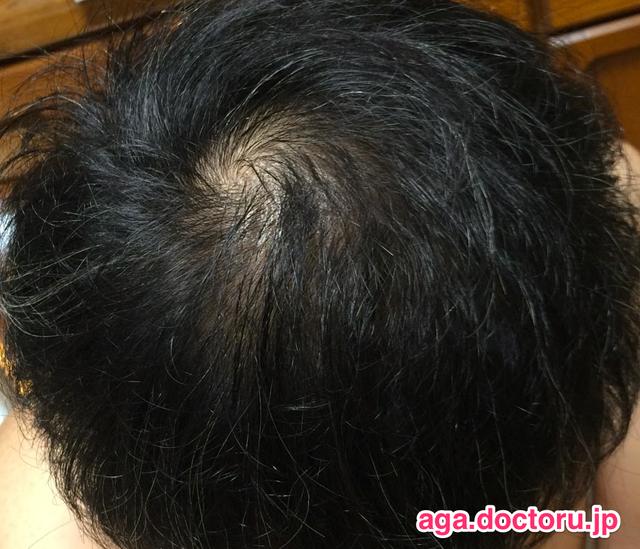 AGA治療の体験談 治療3ヶ月目