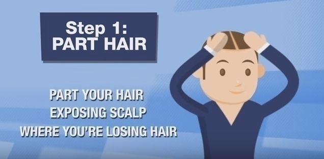 カークランド 公式の使い方1. 髪をかきわけて、ハゲている部分を出す