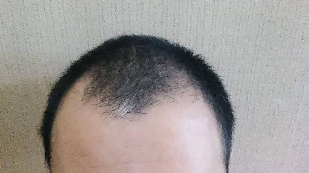 イクオス イクオスはM字ハゲ前髪の後退にも効果アリ!