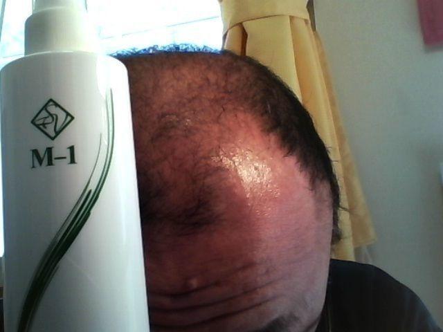 AGA治療の体験談 サラヴィオ化粧品 育毛剤M-1ミスト
