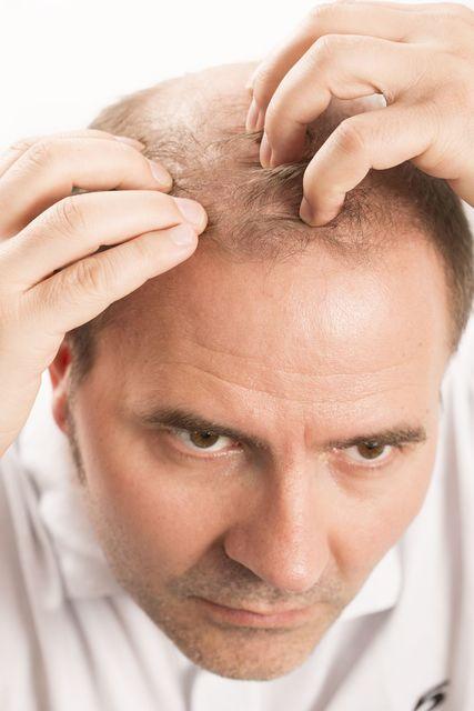 育毛剤 サクセス育毛トニックの副作用
