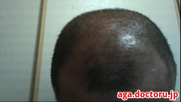 AGA治療の体験談 チャップアップの実際の効果はM字部分の新毛