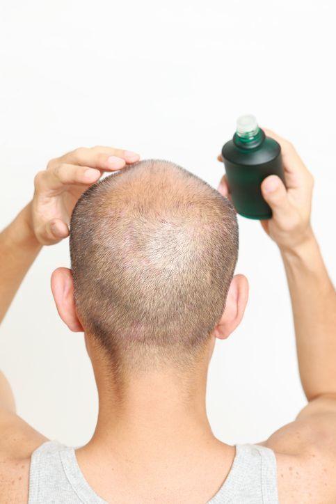 成長因子(グロースファクター) 成長因子は育毛剤や発毛剤にも含まれている