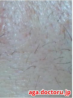 AGA治療の体験談 全身(体毛)の多毛症について