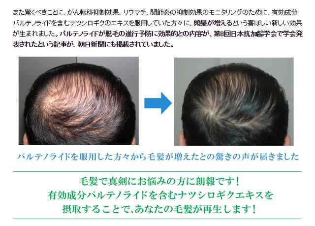 フィーバーフュー 大阪大学の研究により髪の発毛育毛効果が確認された