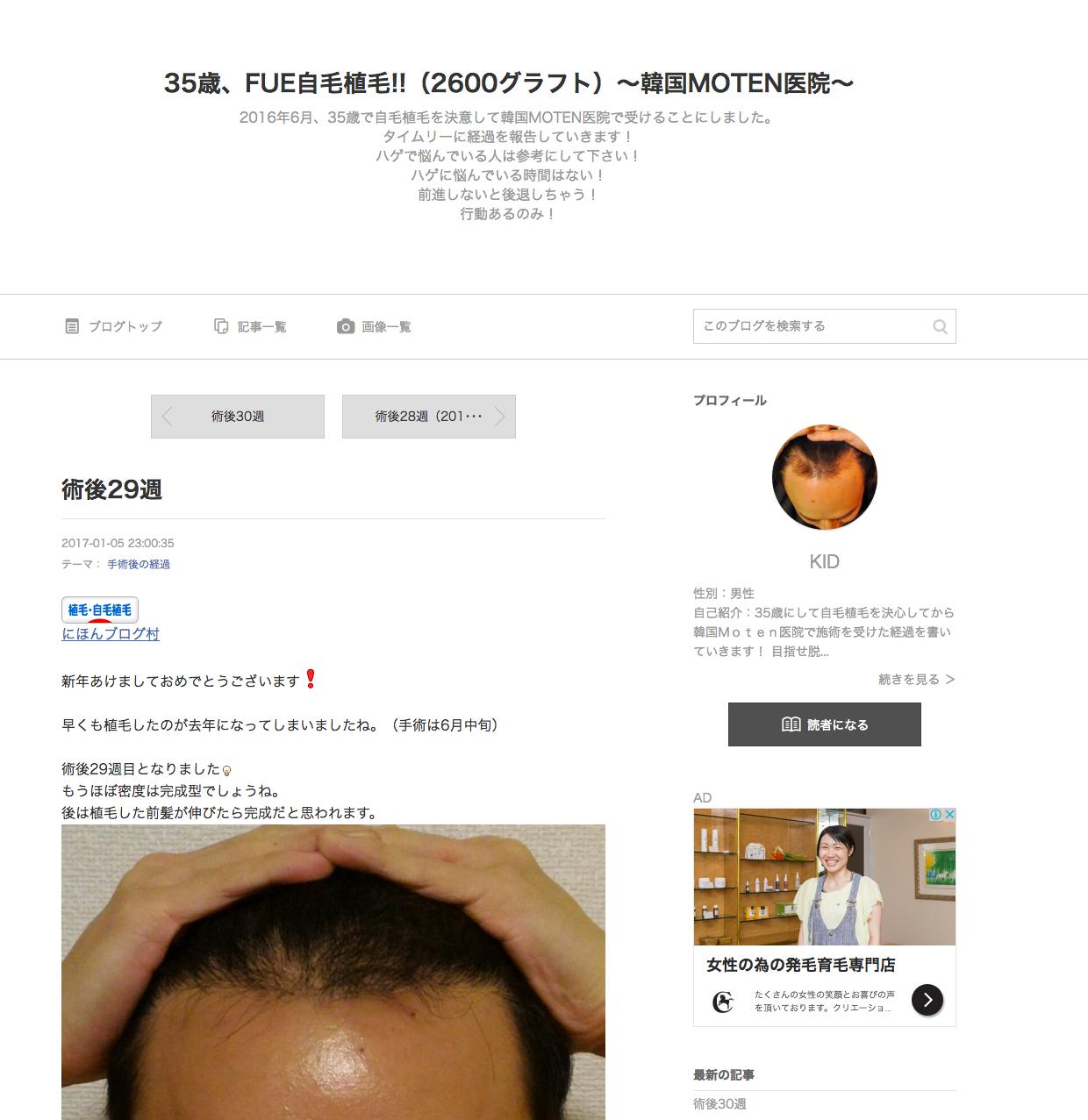 AGA若ハゲの治療 35歳、FUE自毛植毛!!(2600グラフト)~韓国MOTEN医院~