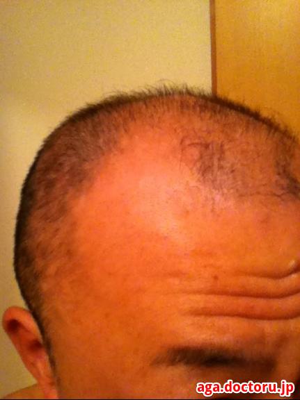 BUBKA(ブブカ) ブブカ使用開始時の頭皮状態